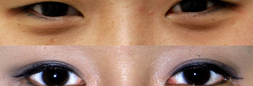chirurgie-esthetique-de-l-oeil-asiatique